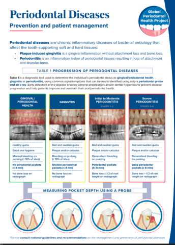 Periodontal diseases chairside guide_Prevention and patient management_chairside guide